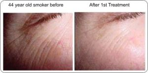 light_smoker skin before and after pic