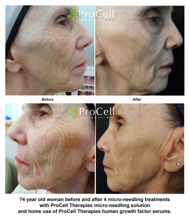 procell before and after 2